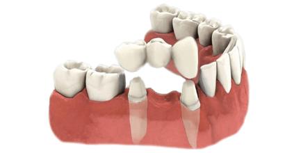 традиционный зубной мост с опорой на соседние зубы