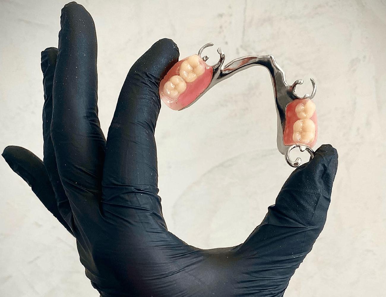 Бюгельный протез задних зубов нижней челюсти с креплением на кляммерах, изготовленный в Минской стоматологии Дудко и Сыновья зубным техником - Матусевич Юлией