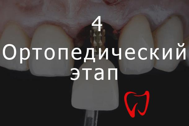 Четвёртый этап имплантации зубов - Ортопедический