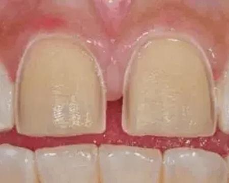 Препарация зубов перед установкой керамических виниров в стоматологии Дудко и сыновья