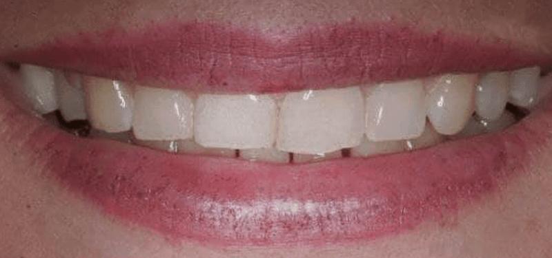 Пациент - Любезная Галина Владимировна - До установки керамических виниров в стоматологии Дудко и сыновья.