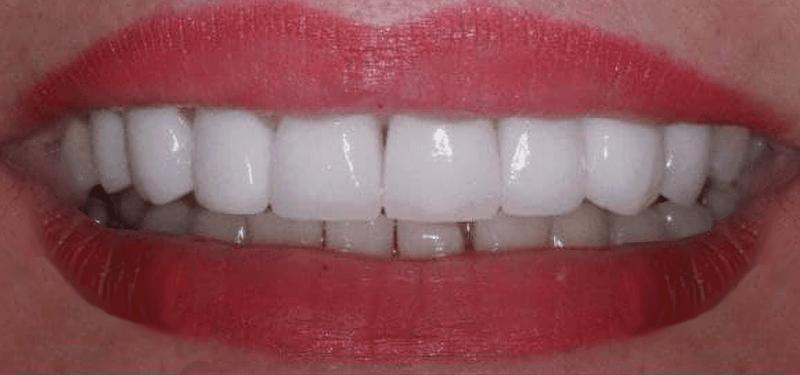 Пациент - Любезная Галина Владимировна - Результат установки керамических виниров в стоматологии Дудко и сыновья.