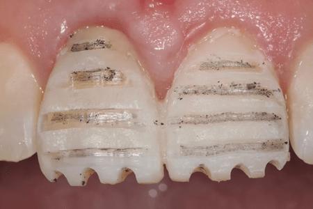 Препарирование зубов для установки виниров - единственный их серьезный недостаток