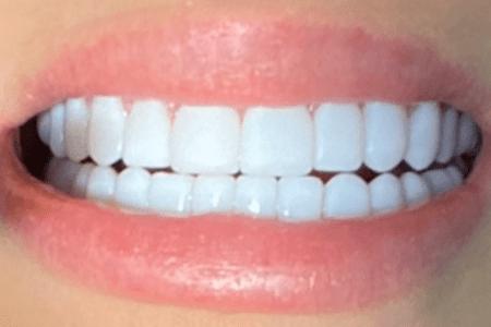 Прекрасно установленные виниры в стоматологии Дудко и Сыновья