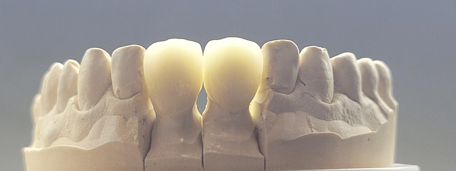 Korony ceramiczne wykonane w laboratorium Dudko i Synowie w 2020 roku