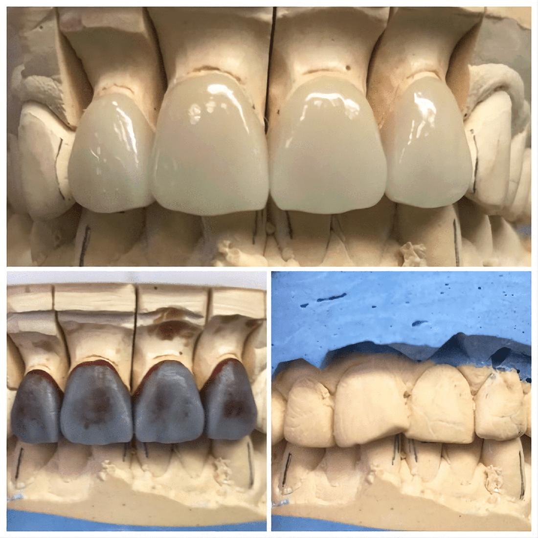 Три стадии изготовления керамических виниров в лаборатории стоматологии Дудко и сыновья. Зубной техник - Пасичник Иван.