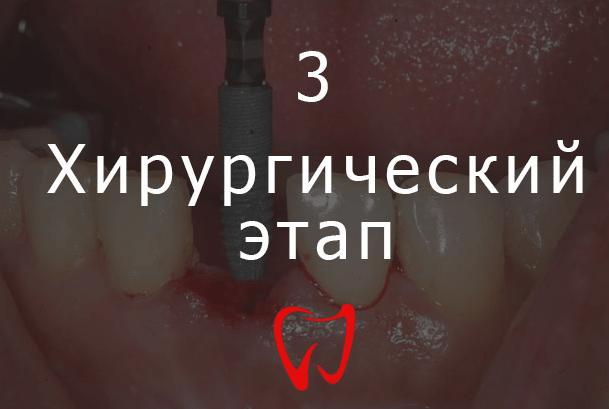 Третий этап имплантации зубов - Хирургический