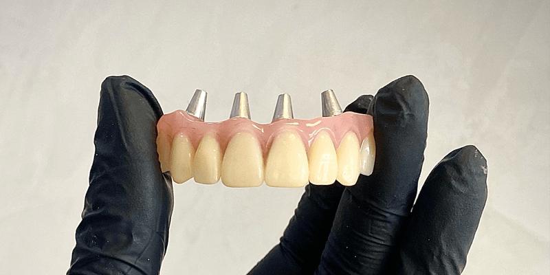 Протез верхней челюсти с фиксацией на импланты для пациента из Минска. Изготовил протез зубной техник - Матусевич Юлия.