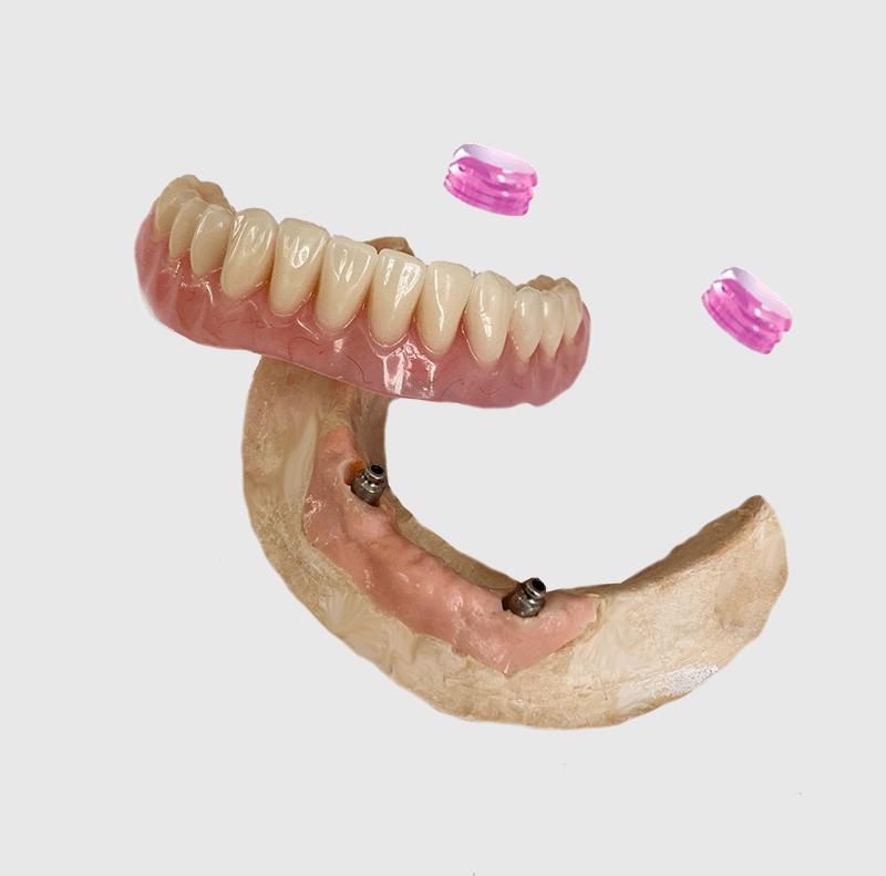 Полный съемный протез на имплантах с креплением по системе Rhein, изготовленный в сентябре 2021 года зубных техником Матусевич Юлией для пациентки Гук, по слепкам ортопеда Мехтиева Руслана